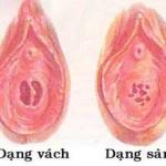 Tìm hiểu cấu tạo của màng trinh và một số dạng màng trinh
